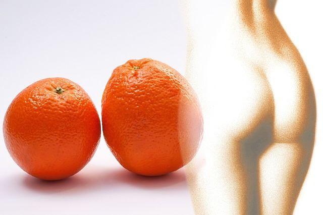 Bisogna prevenire la cellulite per non avere la pelle a buccia d'arancia