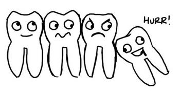 Vignetta di dente del giudizio che spinge sugli altri vicini