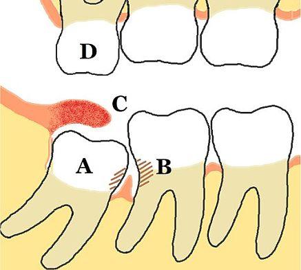 Disegno di pericoronarite dentale con dente che spinge su altri