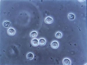 Globuli bianchi infettati da microrganismi patogeno al microscopio