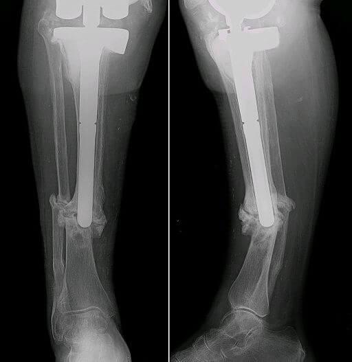 Radiografia di gamba affetta da pseudoartrosi alla tibia e al pèrone
